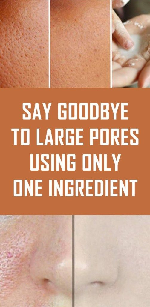 Say Goodbye to Large Pores Using Only One Ingredie…