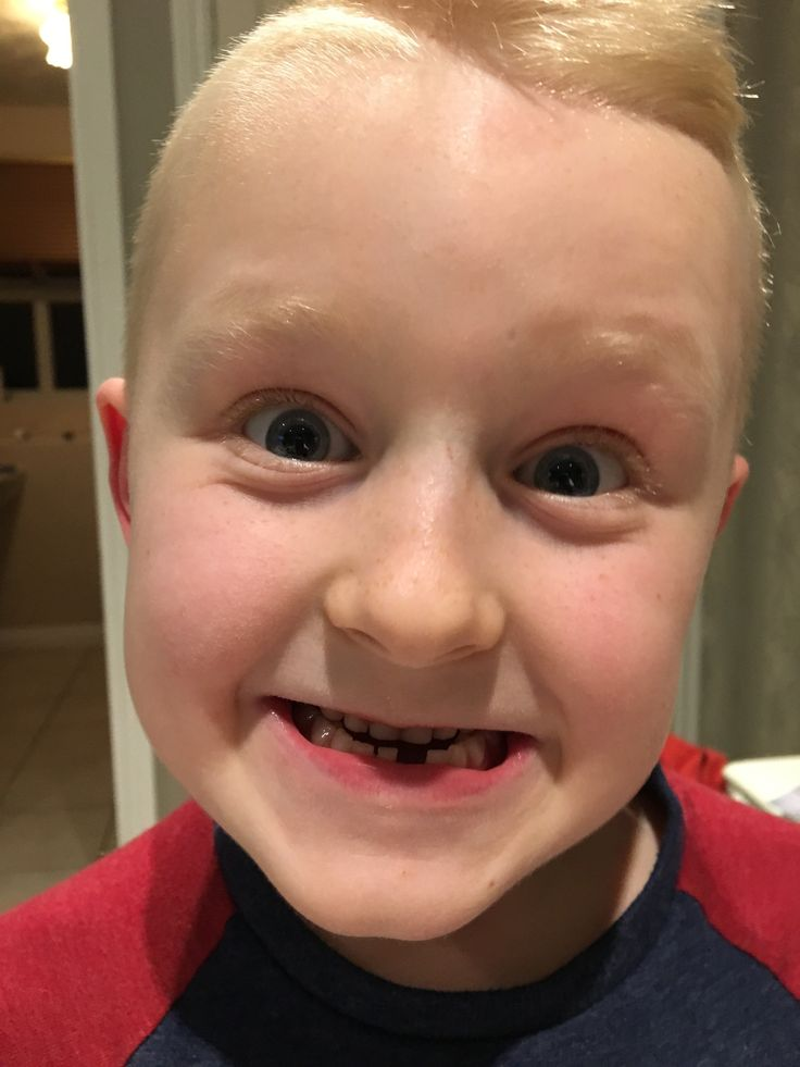 1000 Ideas About First Tooth On Pinterest Scrapbook