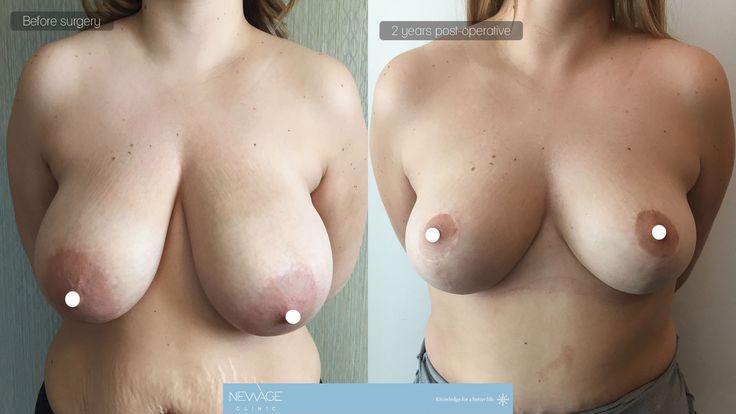 Brustverkleinerung & Lifting vollzogen durch Dr. Özge Ergün. Das Resultat nach 2 Jahren  #Brustverkleinerung