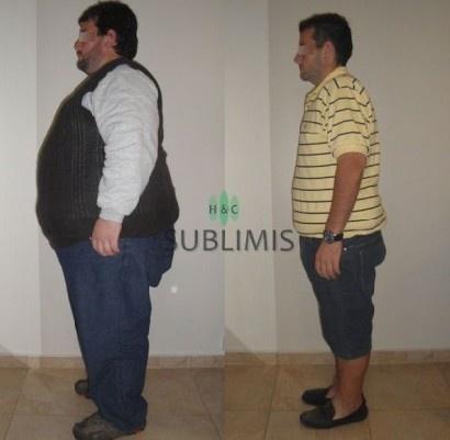 Cirugia de la Obesidad, foto de antes y despues. Operacion realizada en Cordoba, Argentina por medicos de Sublimis.