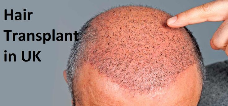 Revive #Hair and #Skin Clinic has a record of providing effective results in no time for surgery of #hair_transplant in the UK. They are professional to the level best and offer full pre and post-surgery care.