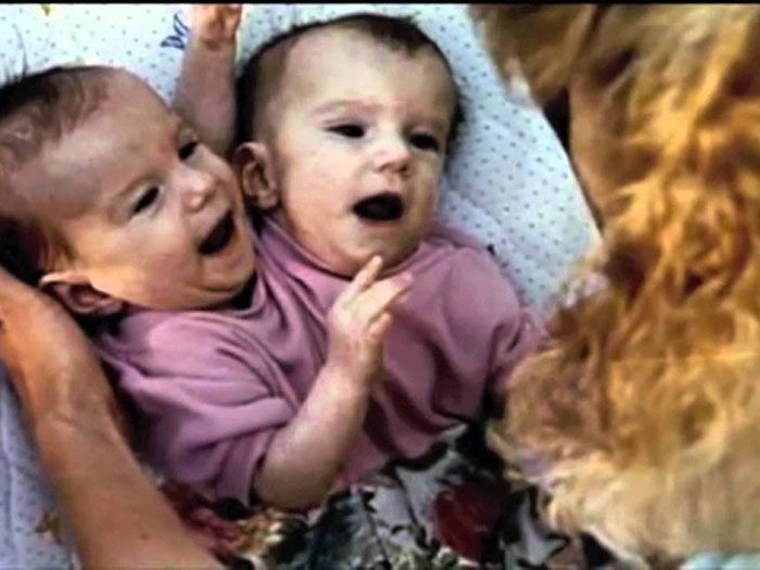 ABBY AND BRITTNEY HENSEL | Unusual Facts About Famous Conjoined Twins Abby And ...