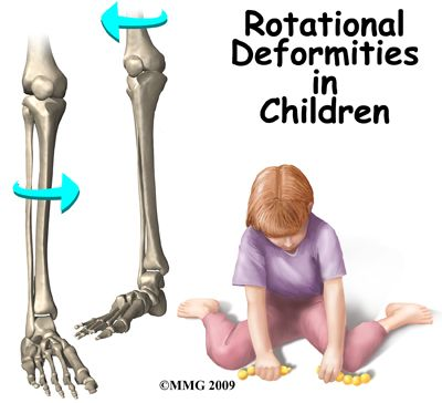 """Why we don't """"W"""" sit!  Rotational Deformities in Children -- nice, parent-friendly article"""