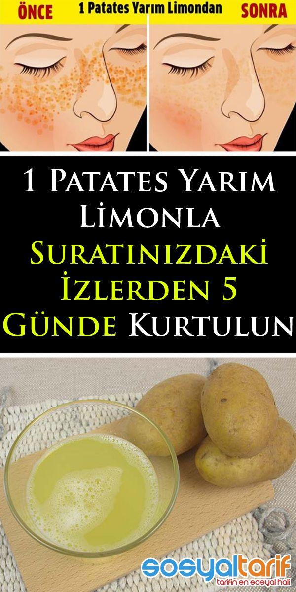 1 Patates Yarım Limonla Suratınızdaki İzlerden 5 Günde Kurtulun