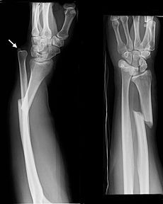 Galeazzi fracture is a fracture of the radius with dislocation of the distal radioulnar joint. It classically involves an isolated fracture of the junction of the distal third and middle third of the radius with associated subluxation or dislocation of the distal radio-ulnar joint; the injury disrupts the forearm axis joint.