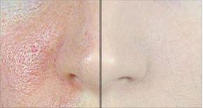 Sin duda, los poros abiertos afectan considerablemente nuestra apariencia física, pero afortunadamente existen productos naturales que te pueden