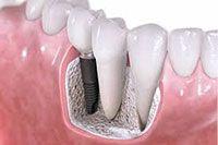 ¿Qué es un implante dental? #Implantedental #implante #clinicadental #dentistas #Orbisdentis