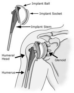 As the Knee  and hip replacement surgery  is among the most commonly performed surgeries in India now a days, Shoulder Replacement Surgery ...