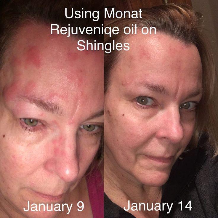 Testimony on using Rejuveniqe Oil on shingles. - Medical, Wellness, & Health - Restoration Board Community