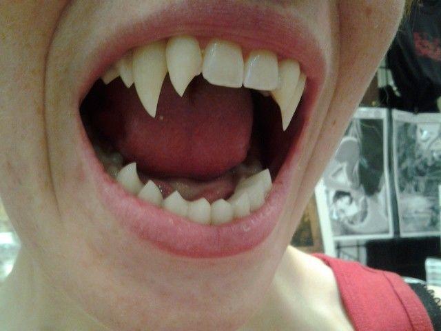 vampire teeth diy | How Can I Get Real Vampire Teeth Custom fangs and vampire teeth ...