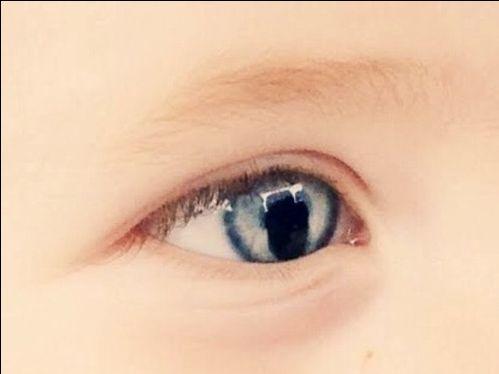 Coloboma de iris consecuencias