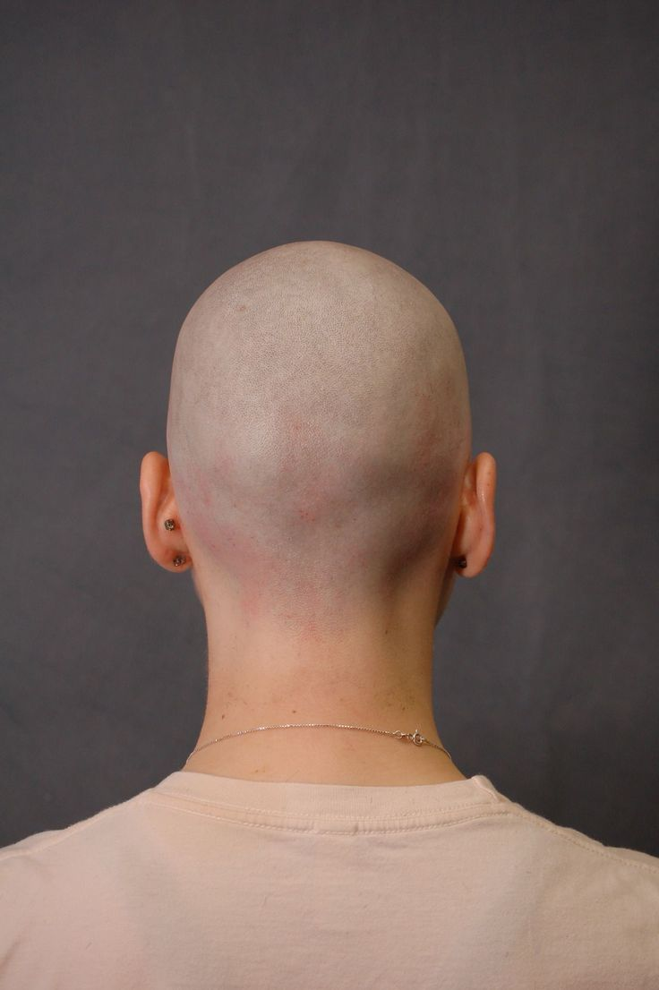 Symbolism of woman shaved head