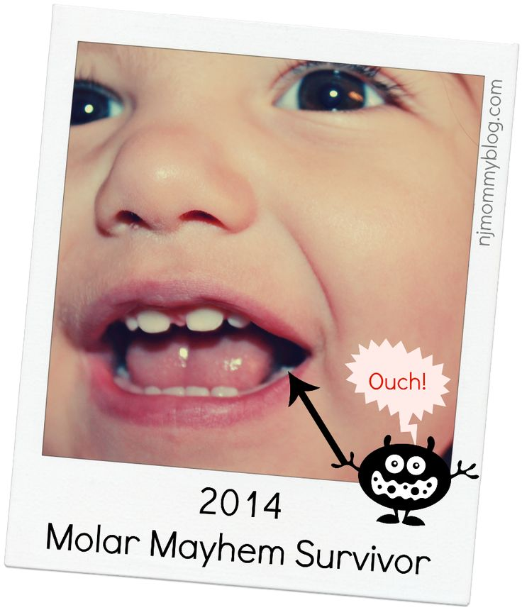 Toddler Teething: Signs and Symptoms of the First Molars