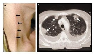 Tonsillitis Understood: Lemierre Syndrome. A. Thropbophlebitis of external jugular vein. B. Bilateral pleural effusion and multiple areas of consolidation with cavitation