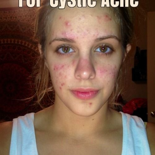 How To Get Rid of Cystic Acne? Cystic Pimples... | Health, Beauty, Body and Fitness