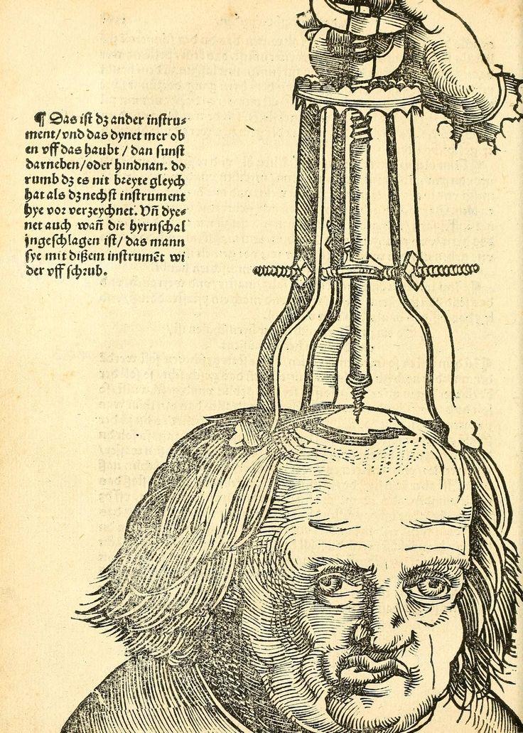 Artist: Hans Wechtlin, Title: Feldbuch der Wundartzney, Page: 72, Date: 1528