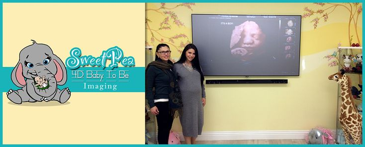 HD Live Ultrasound at Sweet Pea 4D Baby To Be Imaging #3DUltrasound #4DUltrasound #MobileUltrasound #Ultrasound #3DUltrasounds #HDLiveUltrasound #Pregnancy #PregnancyUltrasound #BabyBoutique #BabyStore #BabyClothing #BeverlyHills #BeverlyHills90210