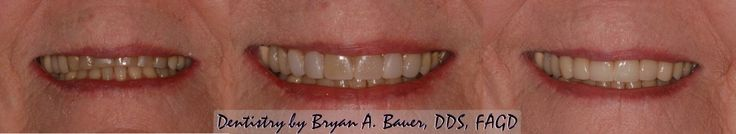 Natural Looking Dental Veneers