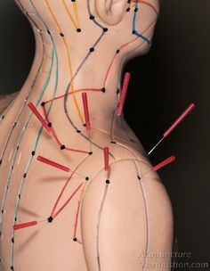Acupuncture points used for shoulder pain: http://www.acupuncturemoxibustion.com/acupuncture-points/shoulder-pain-points/