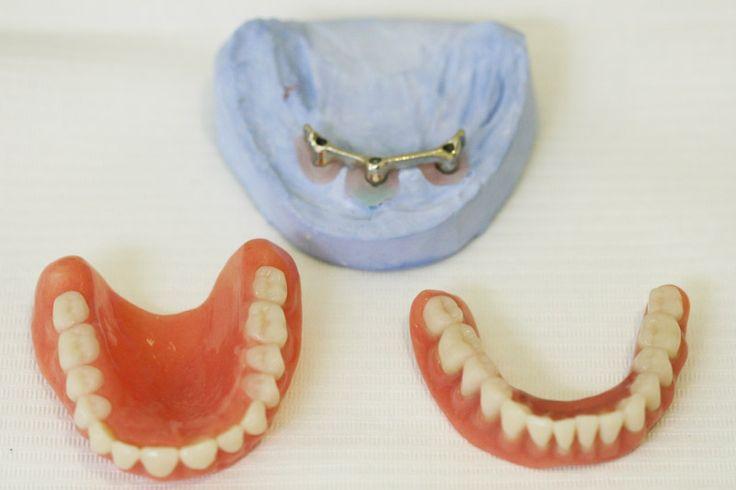 Alsó és felső teljes fogsor hiánypótlása | Uniklinik.hu - Együtt a specialisták