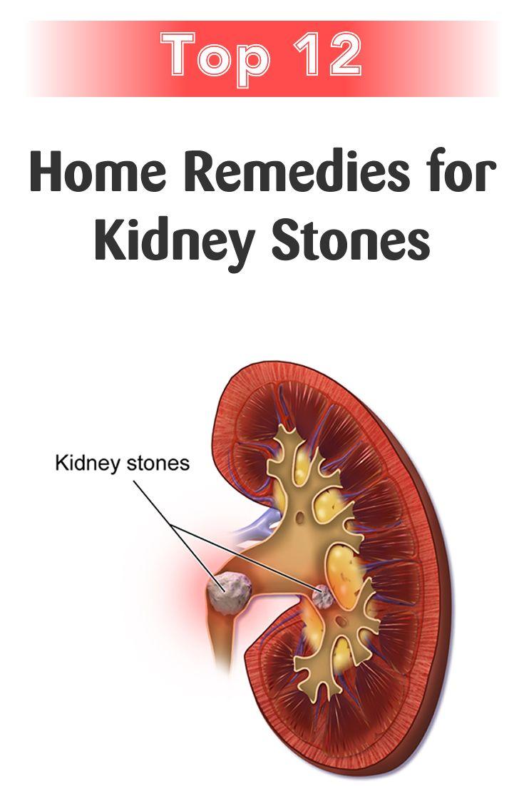 Home Remedies For Kidney Stones Kidey Stones Health Remedies Kidney Stones Remedy Treat Kidney Stones Kidney Stones