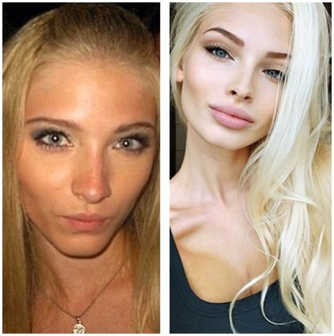 missalena92 Same Girl:  Before & After Plastic Surgery