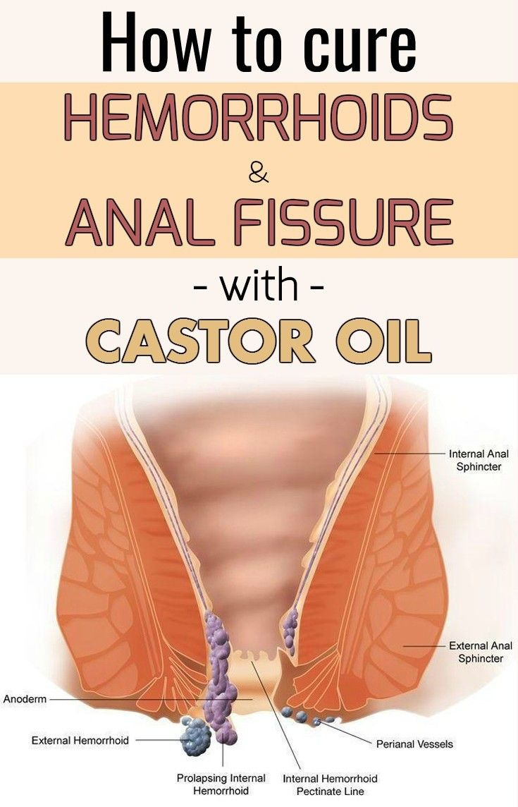 Hemorrhoids and anal fissures