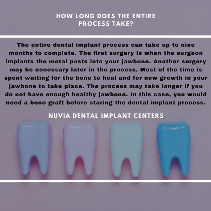 How Long Does The Entire Process Take Nuvia Dental