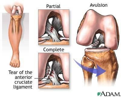 Reconstruction Surgery