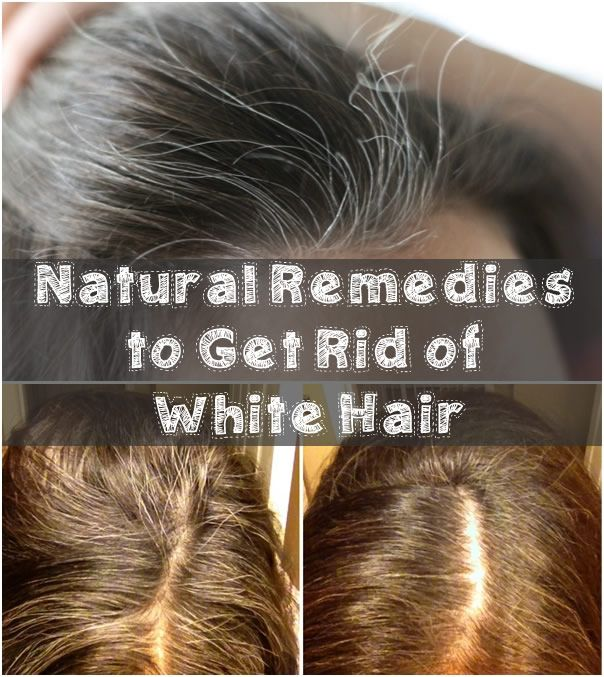 Natural Remedies to Get Rid of White Hair | Grey, White ...