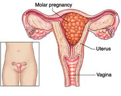 learn the basic pathology of molar pregnancy/ hydatidiform mole