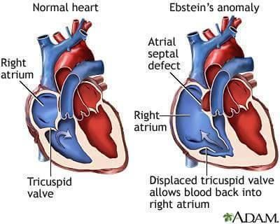 Ebstein's anomaly is a rare heart defect in which parts of the tricuspid valve are abnormal. The tricuspid valve is normally made of three parts, called leaflets or flaps. In patients with Ebstein's anomaly, the leaflets are larger and unusually deep in the right ventricle. The defect usually causes the valve to work poorly, and blood may go the wrong way back into the right atrium. The backup of blood flow can lead to heart swelling and fluid buildup in the lungs or liver.