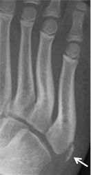 165 best images about Foot Conditions on Pinterest ... | 132 x 254 jpeg 5kB
