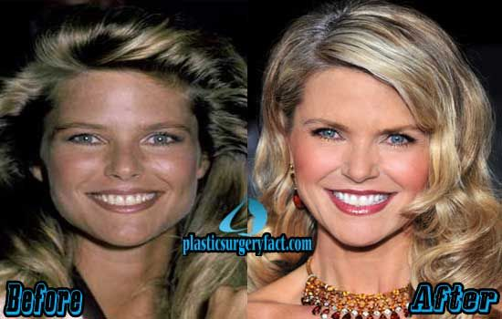 Christie Brinkley Plastic Surgery Facts | http://plasticsurgeryfact.com/christie-brinkley-plastic-surgery-before-and-after-photos/