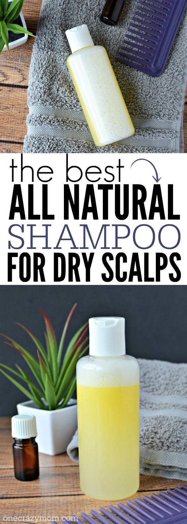 The best Natural Dandruff Shampoo. It is The best treatment for dry scalp and dandruff. Try this Easy Homemade Dry scalp shampoo today!
