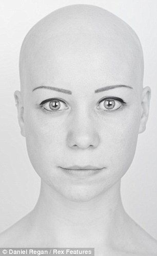Photographer's stunning images of alopecia sufferers as part of project to create awareness about the condition.