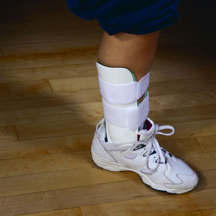 The Most Common Type of Ankle Fracture Is...