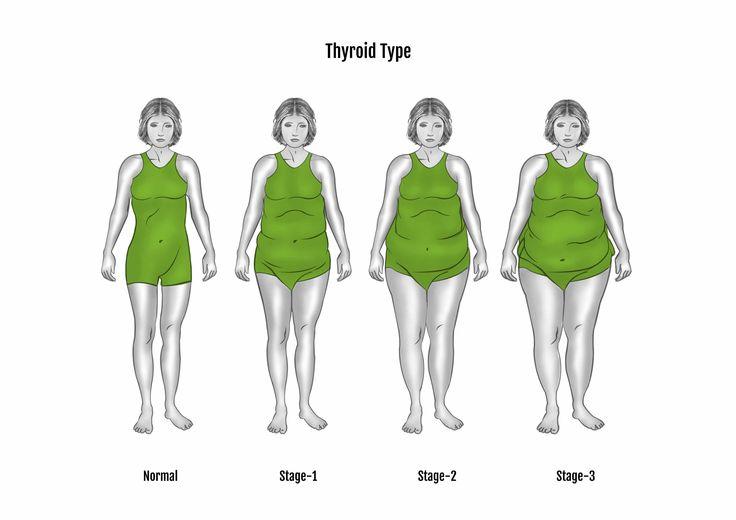 Pajzsmirigy alul és túlműködés nőkben? 6 étel és 2 könnyű módszer, amelyek segítenek helyreállítani a problémás bélrendszered! (és a pajzsmirigyed?) Van olyan ember, akinek tökéletesen működik az emésztése? Ha van néha hasmenésed, székrekedésed, hasfájásod, vagy egyszerűen áll minden, akkor nem árt ha a sok ülés vagy az étkezésed miatt ellustult bélrendszered ételekkel segíted abban, hogy visszatérjen a normális kerékvágásba.