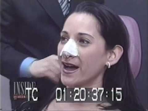 Rhinoplasty Surgery Before and After New York City.