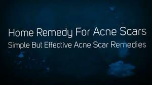 The article gives people a lot of effective ways to get rid of acne scars fast and naturally. Acne i...