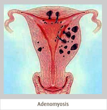 #Adenomyosis can cause very painful periods and heavy bleeding. Learn more about the symptoms, diagnosis, and treatment.