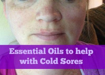 Melaleuca essential oil for cold sores