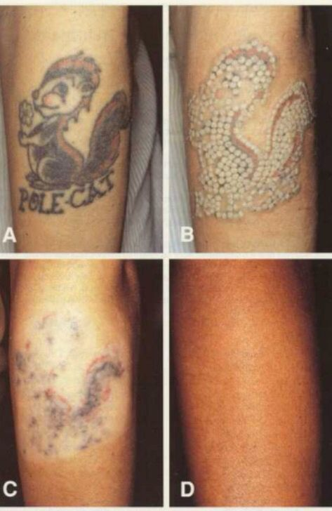 how to get rid of tattoos naturally
