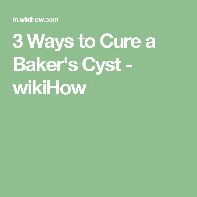 3 Ways to Cure a Baker's Cyst - wikiHow