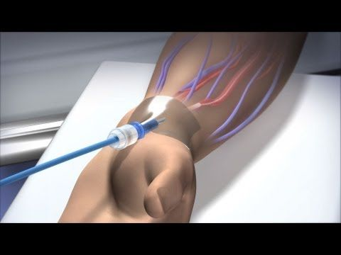 Cardiac catheterization via radial artery explained: these are soo much easier on patients...and nurses!