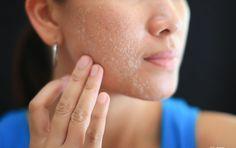 Como Deshacerse De Los Poros Obstruidos Top 10 Remedios Caseros http://top10remedioscaseros.com/poros-obstruidos/