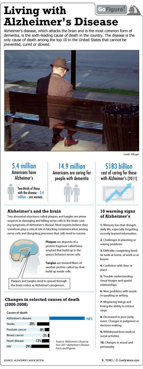 Learn about Alzheimer's Disease, a dementia that afflicts millions of Americans, in today's GoFigure LiveScience infographic.