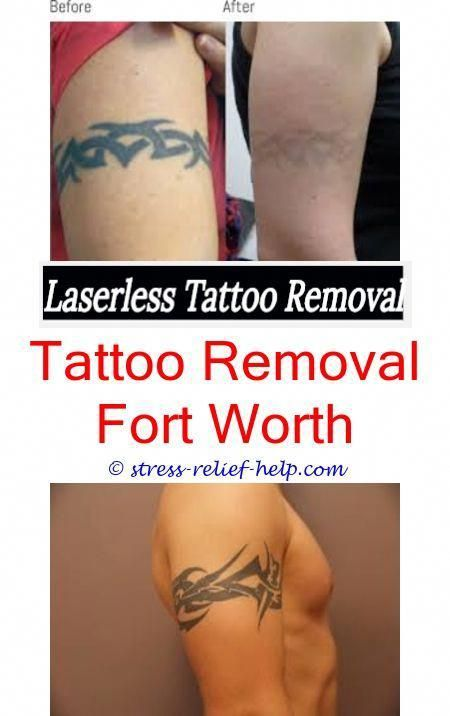 How To Start A Tattoo Removal Business Uk Green Can I Get Laser While Pregnant