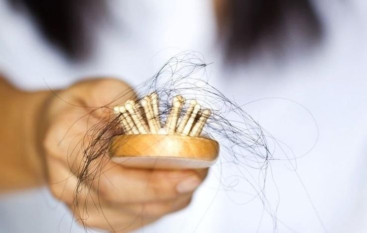 7 Foods That Stop Hair Loss  http://www.rodalesorganiclife.com/food/7-foods-that-stop-hair-loss?%2527s_Organic_Life=