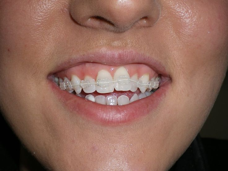 Adult braces and dating